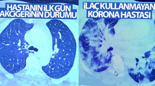 İlaç kullanan korona hastaları ile kullanmayanlar arasındaki inanılmaz fark
